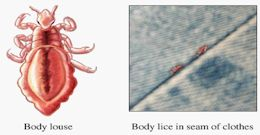 Body Lice Are Spread By Direct Contact With Infested People, And Their  Bedding Or Clothing.